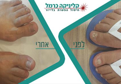 לפני ואחרי טיפול 3