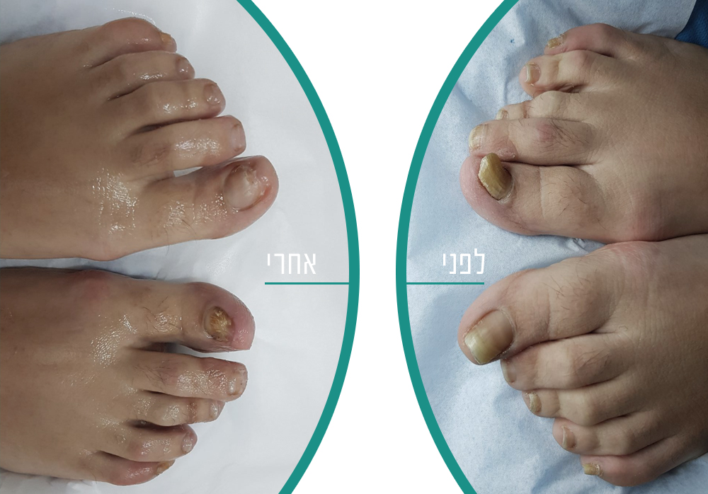לפני ואחרי טיפול בפטרת ציפורניים
