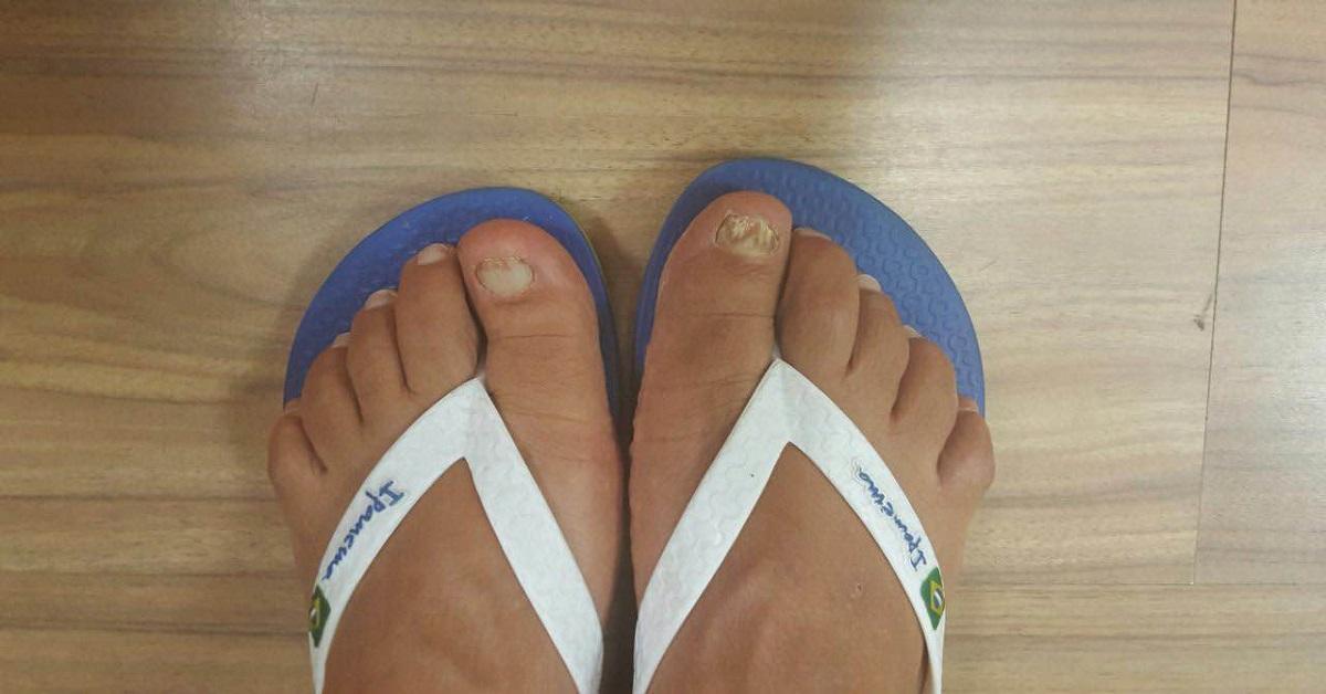 תמונות לפני ואחרי של טיפול בפטרת ציפורניים