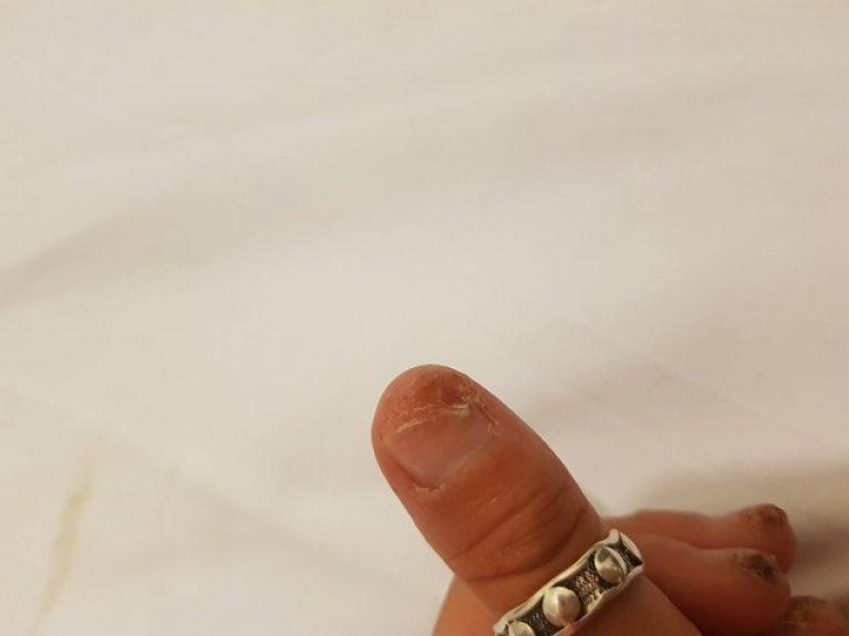 טיפול בפטרת ציפורניים - לפני