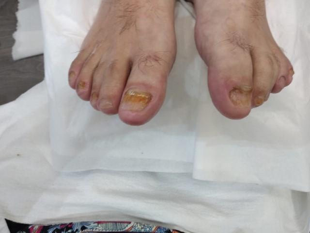 אחרי טיפול בפטרת ברגליים