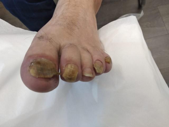לפני טיפול בפטרת ברגליים